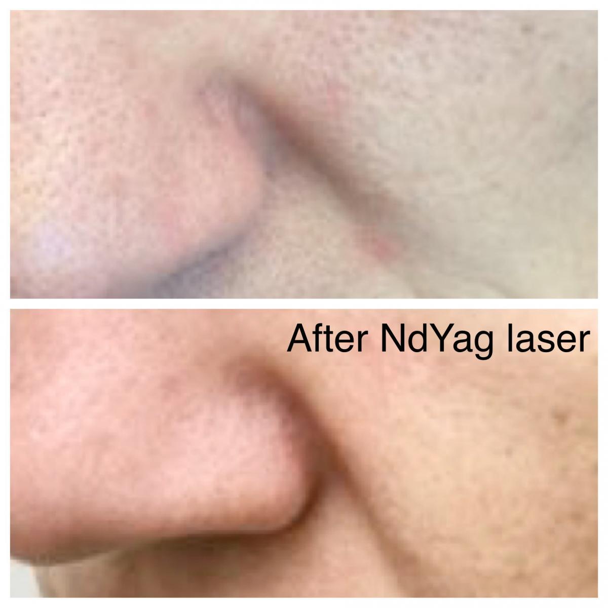 After-MDYag-Laser